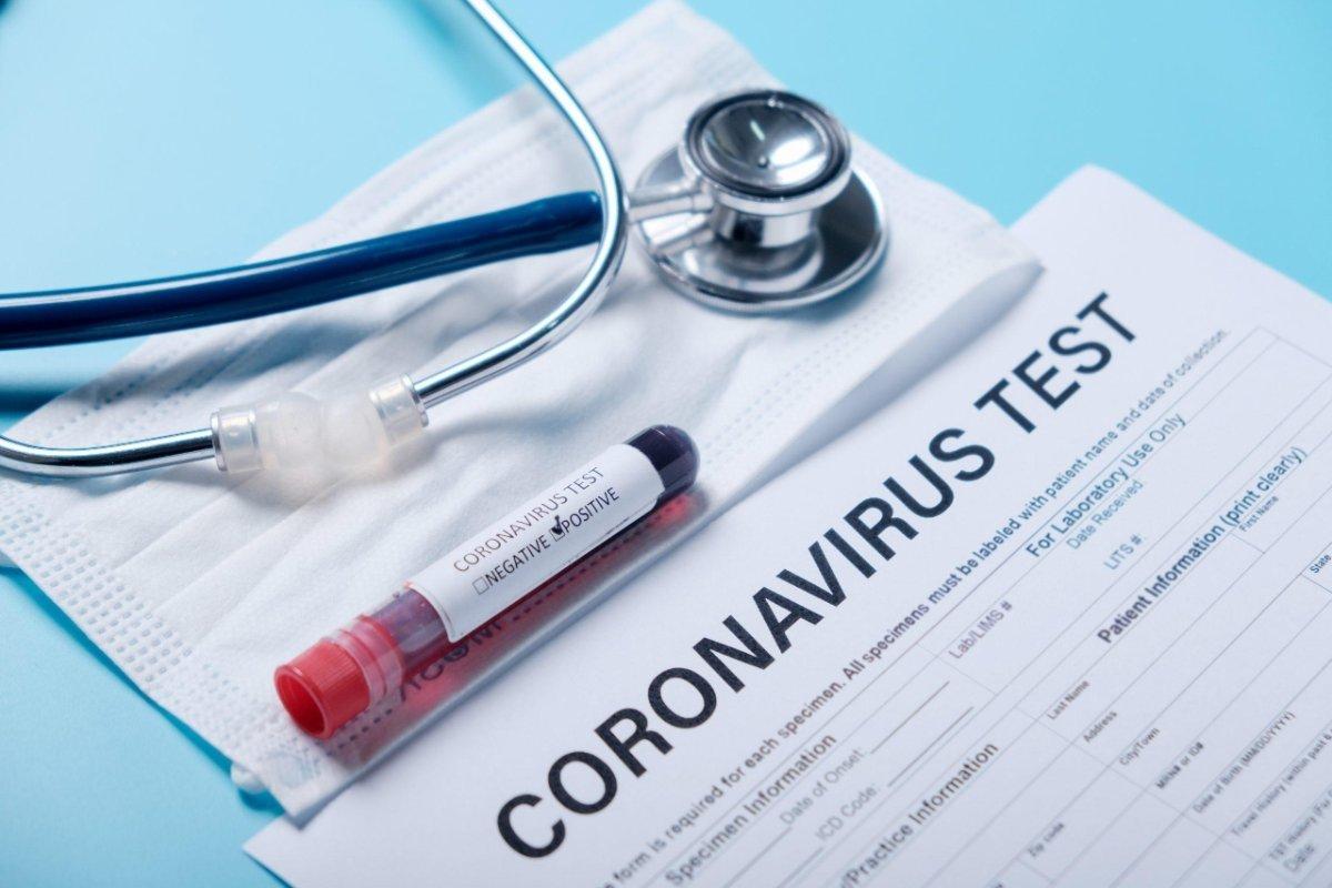 Koronavirus: Azərbaycanda sutkalıq yoluxma və sağalma sayı açıqlanıb